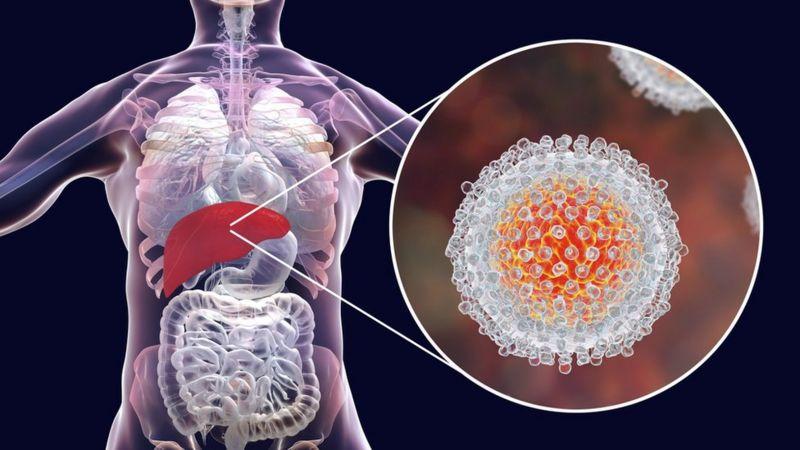 नोबेल पुरस्कारः हेपाटाइटिस सी भाइरस पत्ता लगाउने तीन वैज्ञानिकलाई यस वर्षको पुरस्कार